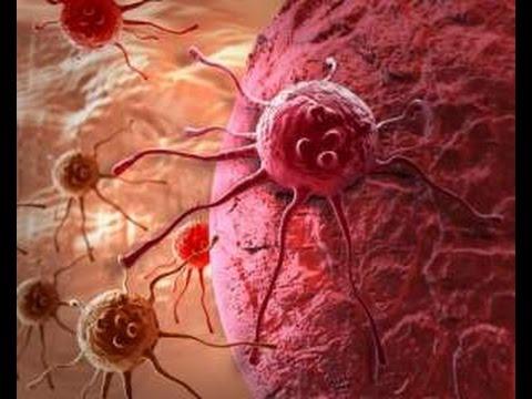 Почему в наше время люди массово болеют раком. Денис Малинов