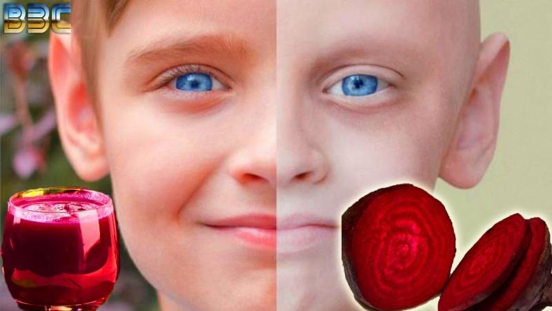 Вся правда о лечении Свеклой ( Вред и Польза )   Лечение   Простуда Молочница Рак Диабет Регенерация
